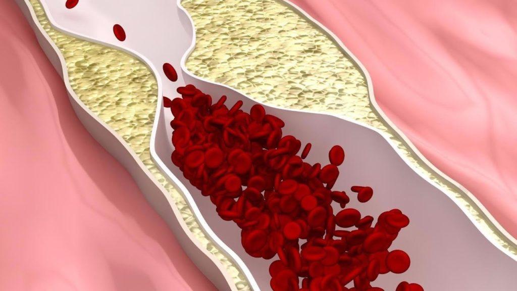 Опасен ли холестерин