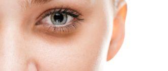 Синяки под глазами, как избавиться навсегда